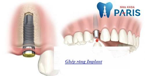 ghép răng Implant