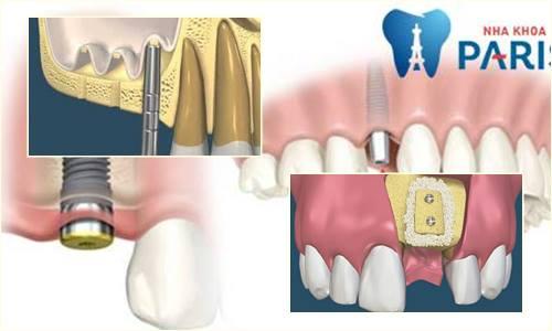 ghép răng Implant13