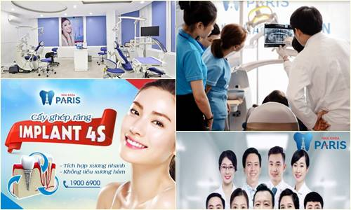 ghép răng Implant14