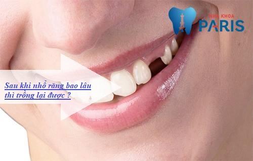 Sau khi nhổ răng bao lâu thì trồng lại được? [Bác sĩ giải đáp] 1
