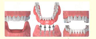 Cấy ghép Implant giải pháp phục hình răng hoàn hảo