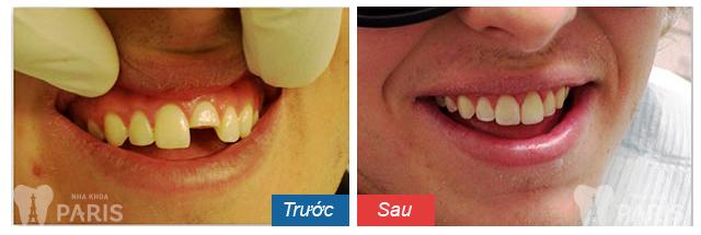 sau khi làm răng sứ