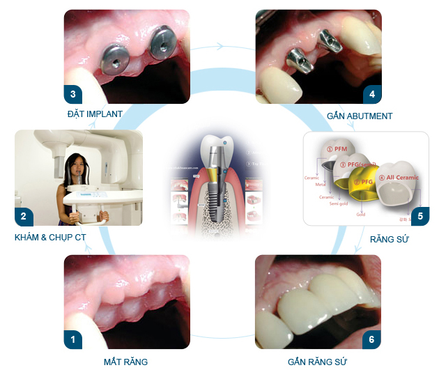 Trồng răng sứ công nghệ 4S Đẹp, An toàn, Không đau nhức