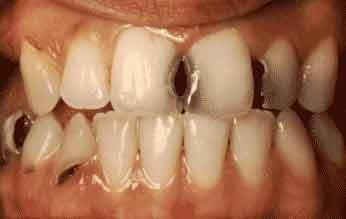 Khắc phục hiệu quả nhất răng cửa bị sâu