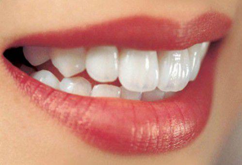 Giá làm răng sứ thẩm mỹ bao nhiêu tiền là RẺ NHẤT hiện nay? 2