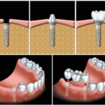 Trồng răng giả mất thời gian bao lâu, phụ thuộc vào đâu?