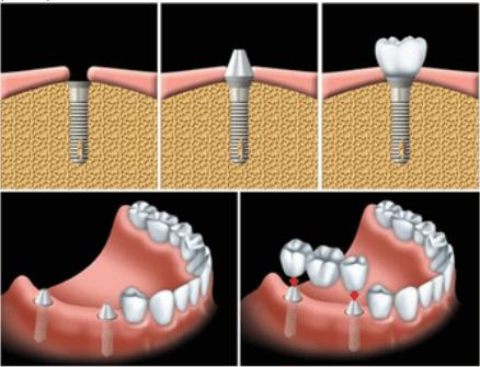 trồng răng như thế nào