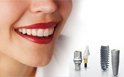 Làm răng bằng implant có giá bao nhiêu tiền