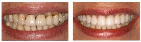 Chụp răng sứ tại Hà Nội - Địa chỉ được đánh giá UY TÍN nhất2
