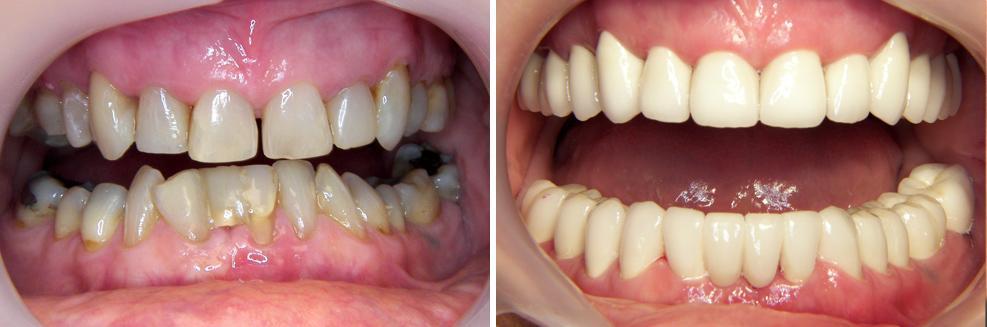 Chụp răng sứ tại Hà Nội - Địa chỉ được đánh giá UY TÍN nhất4