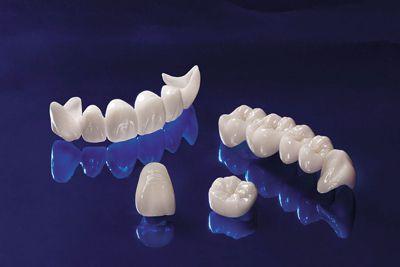 Răng sứ không kim loại là gì và răng sứ có tốt không?