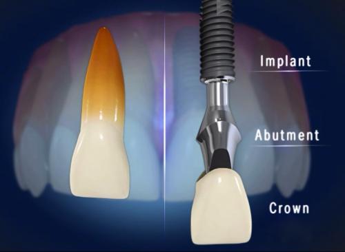 Khắc phục gãy răng vĩnh viễn bằng cấy ghép Implant