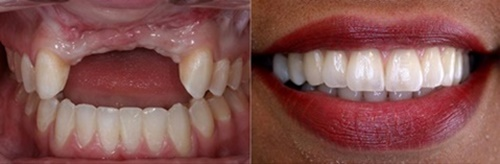 Khi trồng 3 răng liên tiếp nên thực hiện theo phương pháp nào ?