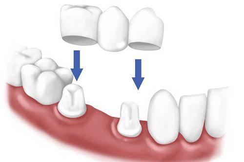 Có nên trồng răng cấm giả bằng phương pháp cầu răng hay không? 4