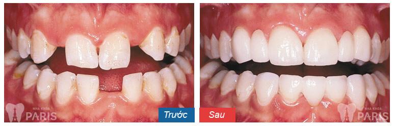 Làm mão răng sứ cam kết rẻ BỀN ĐẸP gấp 7 lần răng thật 8