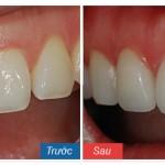 Trồng răng implant giá bao nhiêu tiền là hợp lý?