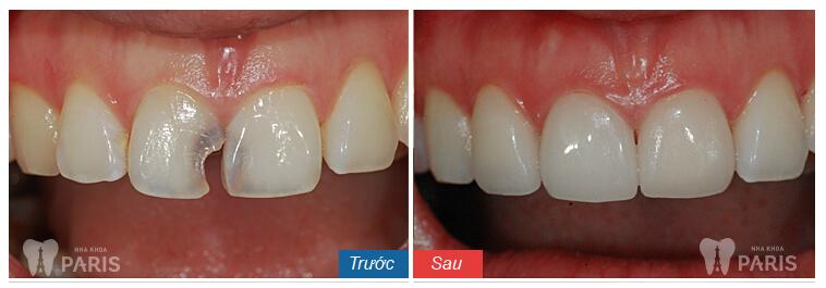 Làm mão răng sứ cam kết rẻ BỀN ĐẸP gấp 7 lần răng thật 9