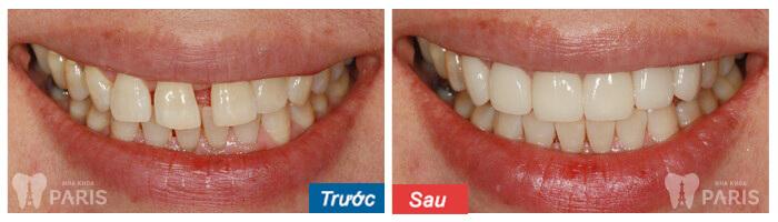Làm răng veneer sứ với CN tiên tiến BỀN ĐẸP tự nhiên nhất 8