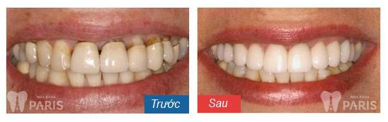 Làm răng veneer sứ với CN tiên tiến BỀN ĐẸP tự nhiên nhất 3