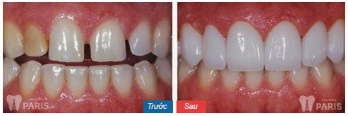 Làm răng veneer sứ với CN tiên tiến BỀN ĐẸP tự nhiên nhất 4