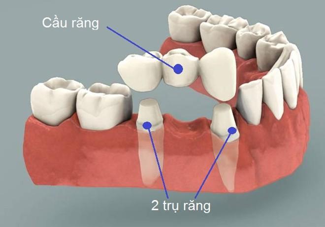 Khắc phục gãy răng vĩnh viễn bằng cầu răng sứ