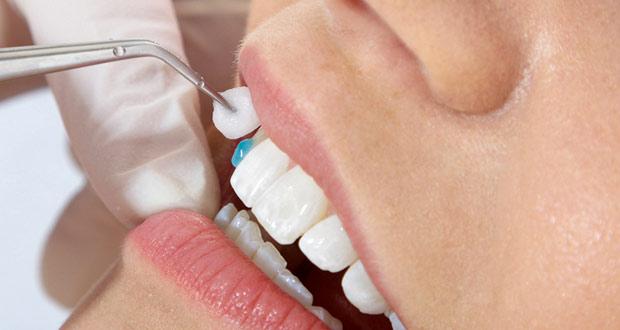 Làm răng veneer sứ với CN tiên tiến BỀN ĐẸP tự nhiên nhất 2