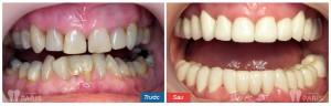 Làm răng sứ có đau không & ảnh hưởng sức khỏe không?