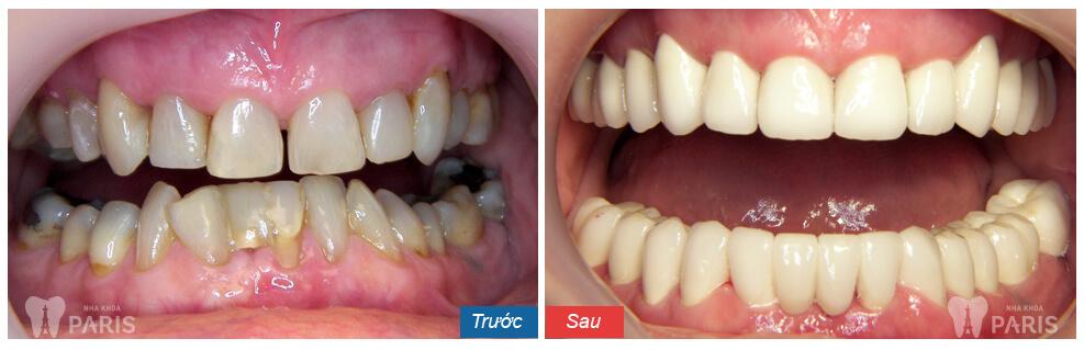 Làm răng sứ có đau không? Kết quả sau khi bọc sứ của KH