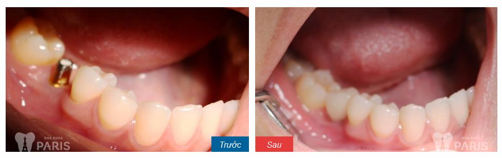 Mất răng hàm số 6 có nên làm cầu răng hay không?