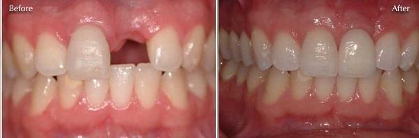 Phương pháp trồng răng An Toàn hiệu quả không đau nhức 2