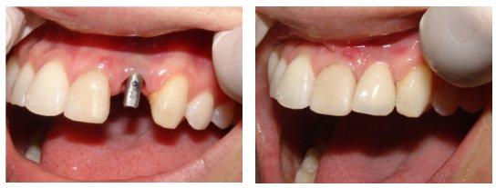 Phương pháp trồng răng An Toàn hiệu quả không đau nhức 4