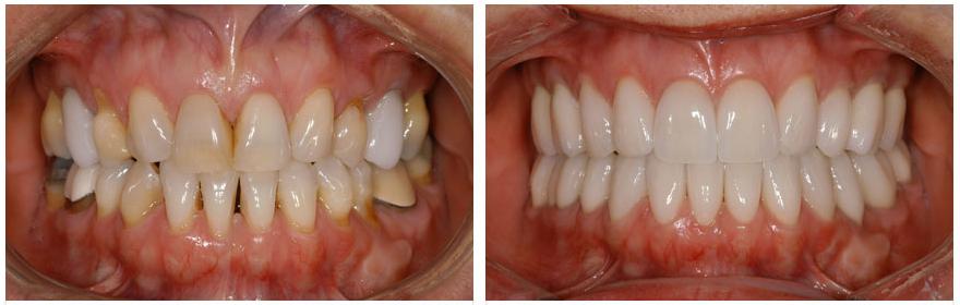 Răng sứ cercon & Quy trình làm răng sứ cercon Ưu Việt nhất 6