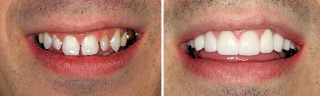 Răng sứ cercon & Quy trình làm răng sứ cercon Ưu Việt nhất 7