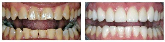 Thông tin từ A-Z về làm răng sứ thẩm mỹ bạn nên biết 5