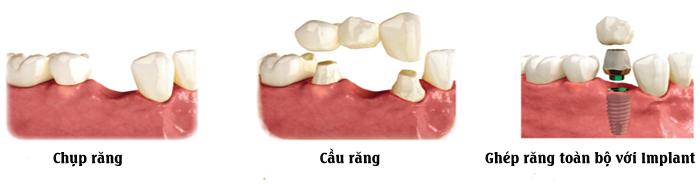 Thông tin từ A-Z về làm răng sứ thẩm mỹ bạn nên biết 1