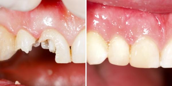 Thông tin từ A-Z về làm răng sứ thẩm mỹ bạn nên biết 2