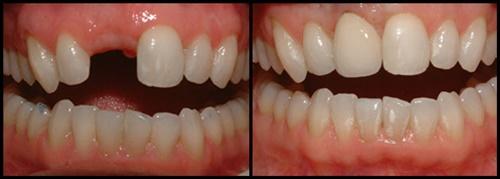 Giá trồng răng cửa MỚI NHẤT và ƯU ĐÃI đã kiểm chứng