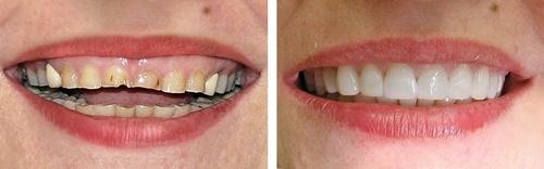 Thông tin từ A-Z về làm răng sứ thẩm mỹ bạn nên biết 4