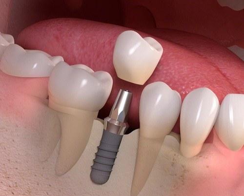 nhổ răng bao lâu thì trồng răng giả 2