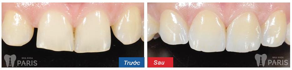 Bảng giá mới nhất cho chụp răng sứ
