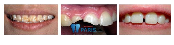 4 kinh nghiệm làm răng sứ BỎ TÚI bạn không nên bỏ qua 7