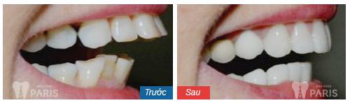 Bật mí địa chỉ làm răng sứ uy tín ở Hà Nội - Chất lượng tốt nhất 4