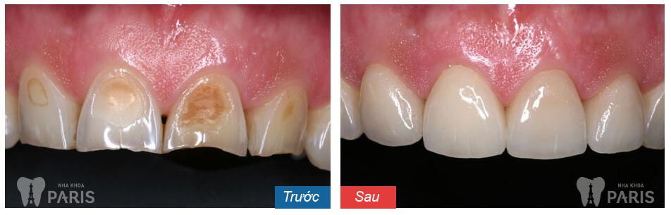 Địa chỉ làm răng sứ uy tín cần có những yếu tố gì? 4