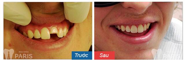 Bật mí địa chỉ làm răng sứ uy tín ở Hà Nội - Chất lượng tốt nhất 5