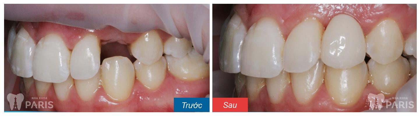 Giá trồng răng nanh giả rẻ nhất là bao nhiêu?