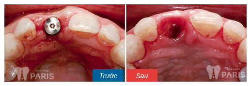 Cấy ghép răng Implant VÔ TRÙNG và an toàn tuyệt đối20