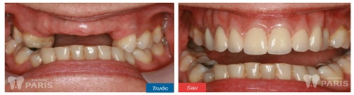 Trồng răng 9