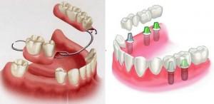 Lưu ý quan trọng của phương pháp răng giả