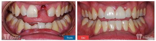 Quy trình trồng răng giả bằng công nghệ ghép răng Implant 2