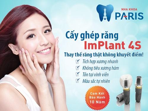 công nghệ trồng răng implant 4s